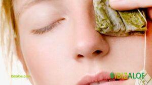 remedios caseros para los orzuelos
