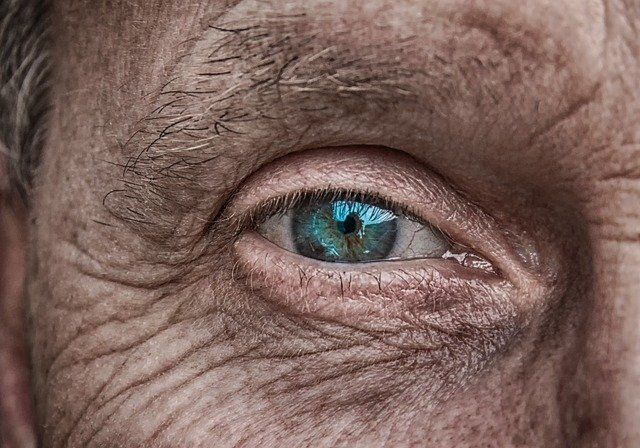 reticulina y piel